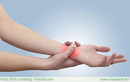 Schmerzen im Handgelenk sind häufig Folgen eines Mausarms